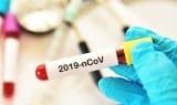 Coronavirus: What do UK employers need to know?